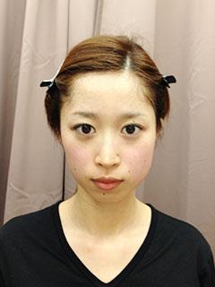 美顔小顔矯正 施術後