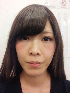 美顔小顔矯正 施術前