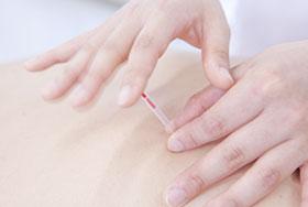 安全な鍼治療